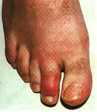 homeopathy treatment of gout foods that increase uric acid gout