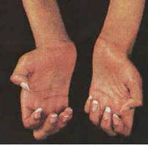 Charcot-Marie-Tooth disease – Symptom Relief